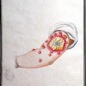 Thumbnail of medical drawing